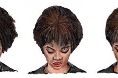 Androgenetic Alopecia Illustration
